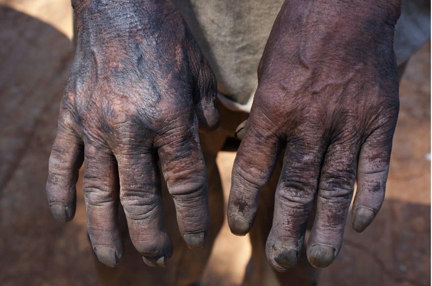 Mãos negras de pele e de carvão de um trabalhador resgatado no interior paulista que não usava equipamento de proteção
