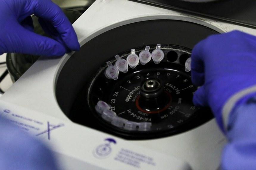 Diagnóstico laboratorial de casos suspeitos do novo coronavírus (2019-nCoV), realizado pelo Laboratório de Vírus Respiratório e do Sarampo do Instituto Oswaldo Cruz (IOC/Fiocruz), que atua como Centro de Referência Nacional em Vírus Respiratórios para o Ministério da Saúde.  Divulgação/Josué Damacena (IOC/Fiocruz)