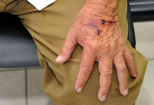 Mão de idoso com machucados